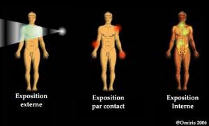 Encyclopédie environnement - radioactivité - exposition rayonnement - radiation exposure - radioactivity