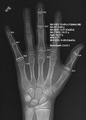 Age osseux horloge epigenetique